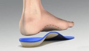 Ortopediska inlägg | Hälsporreinlägg.se
